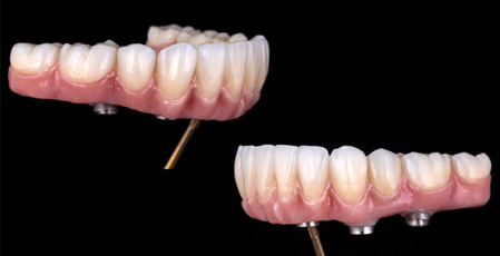 Technical fixed prostheses on dental implants incisors group