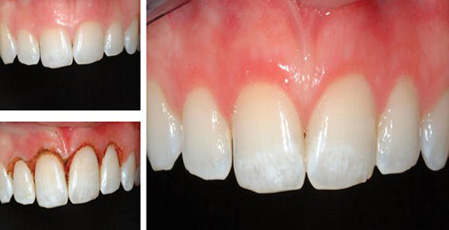 Laser - A new trend in dental value