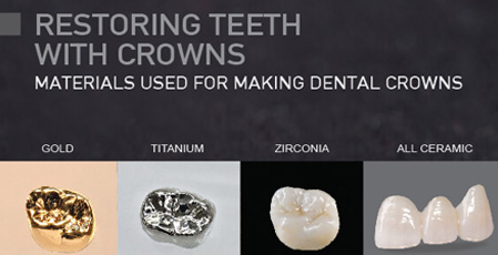 Crowns: Common Materials Used for Making Dental Crowns