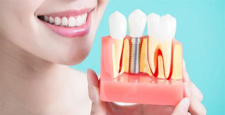 Method implants (implants) Instant Dental for teeth
