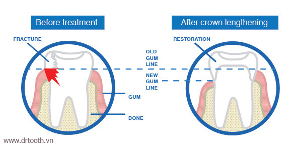dental-crown-lengthening-procedure-a