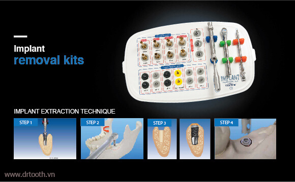 dental-implant-removal-kit-a