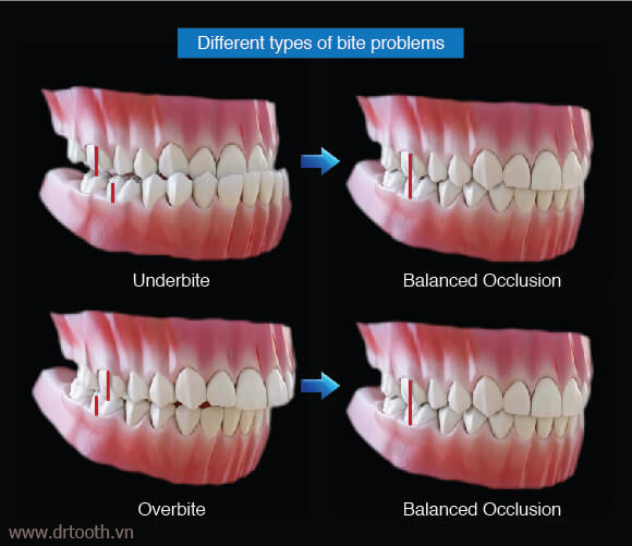 dental-occlusion-different-types-of-bite-problems-a