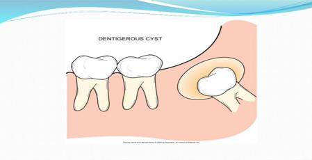 Dental Cysts
