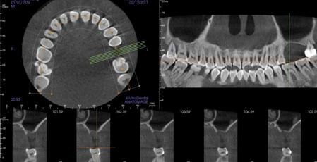 Advantages of Cone beam CT over Panorama film
