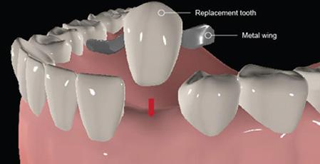 5 Types of Dental Bridges