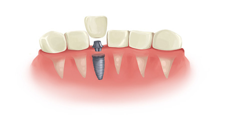 6 tips for looking after your implants