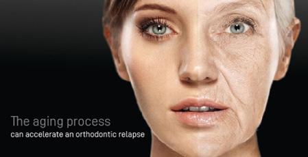 Orthodontic Relapse Part 2