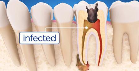 Dental Cysts: What Are They and How They Can Be Prevented?