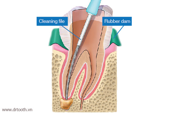 root-canal-treatment-cleaning-file-a