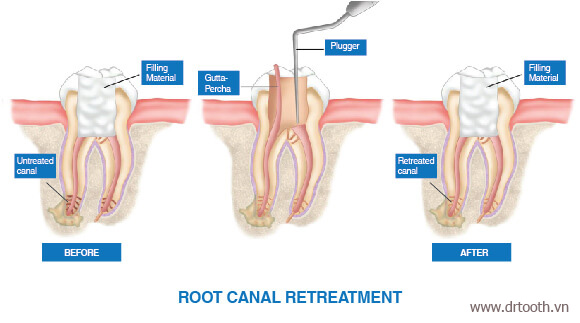 root-canal-treatment-obturation-a