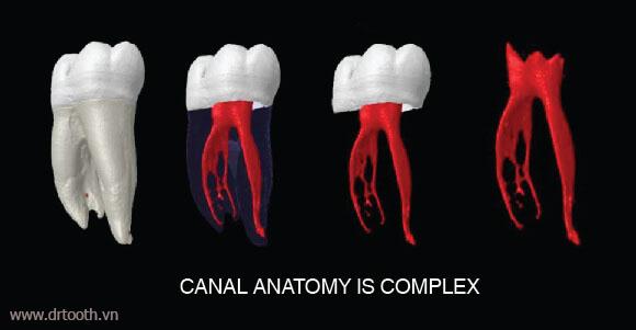 Điều trị tận gốc tủy răng